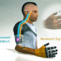 Two Pakistani Engineers Develop Prosthetic Arms That Works With Brain Signal